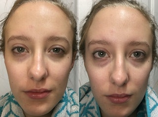 how to avoid puffy eyes the morning after crying