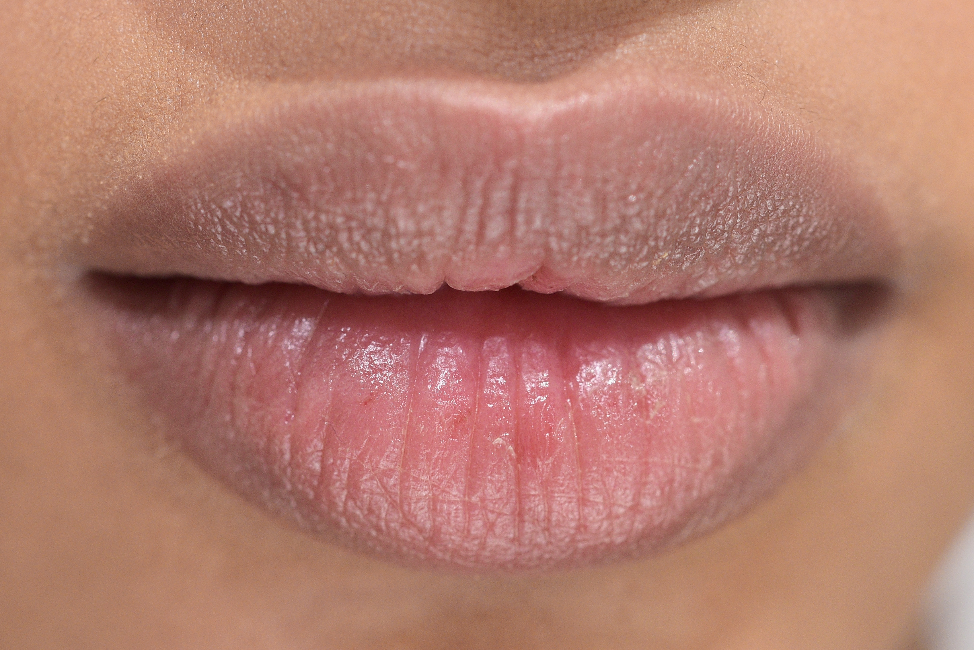 How To Treat Chapped Lips Overnight In Three Easy Steps — PHOTOS