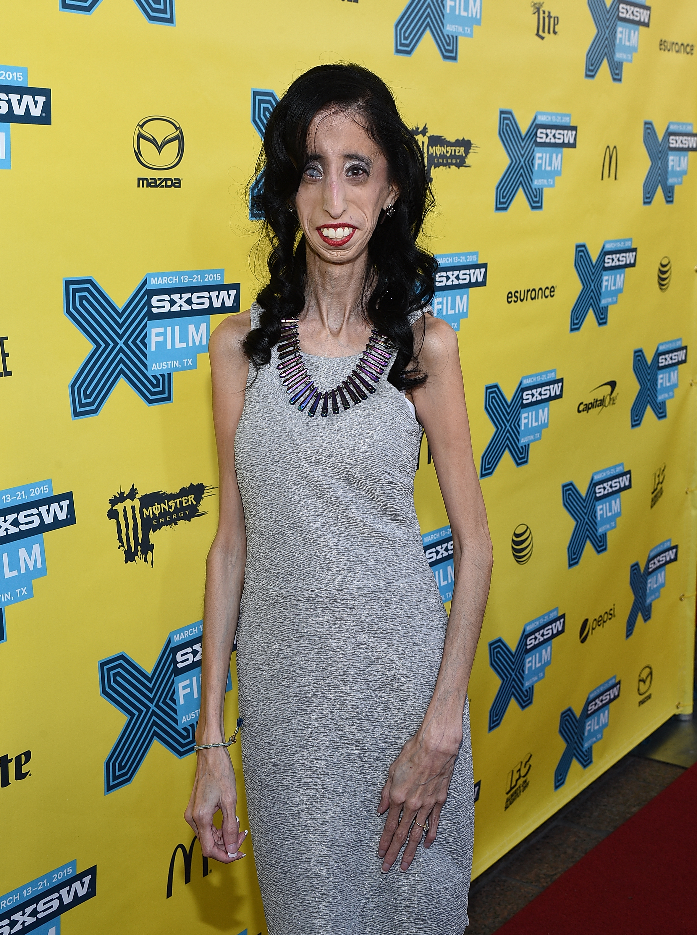 Who Is Lizzie Velasquez? Meet The Inspiring Anti-Bullying ...  Who Is Lizzie V...