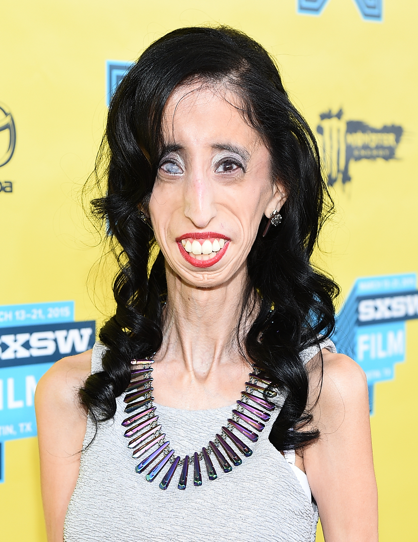 Anti-Bullying Activist Lizzie Velasquez Debuts Her ...  Anti-Bullying A...
