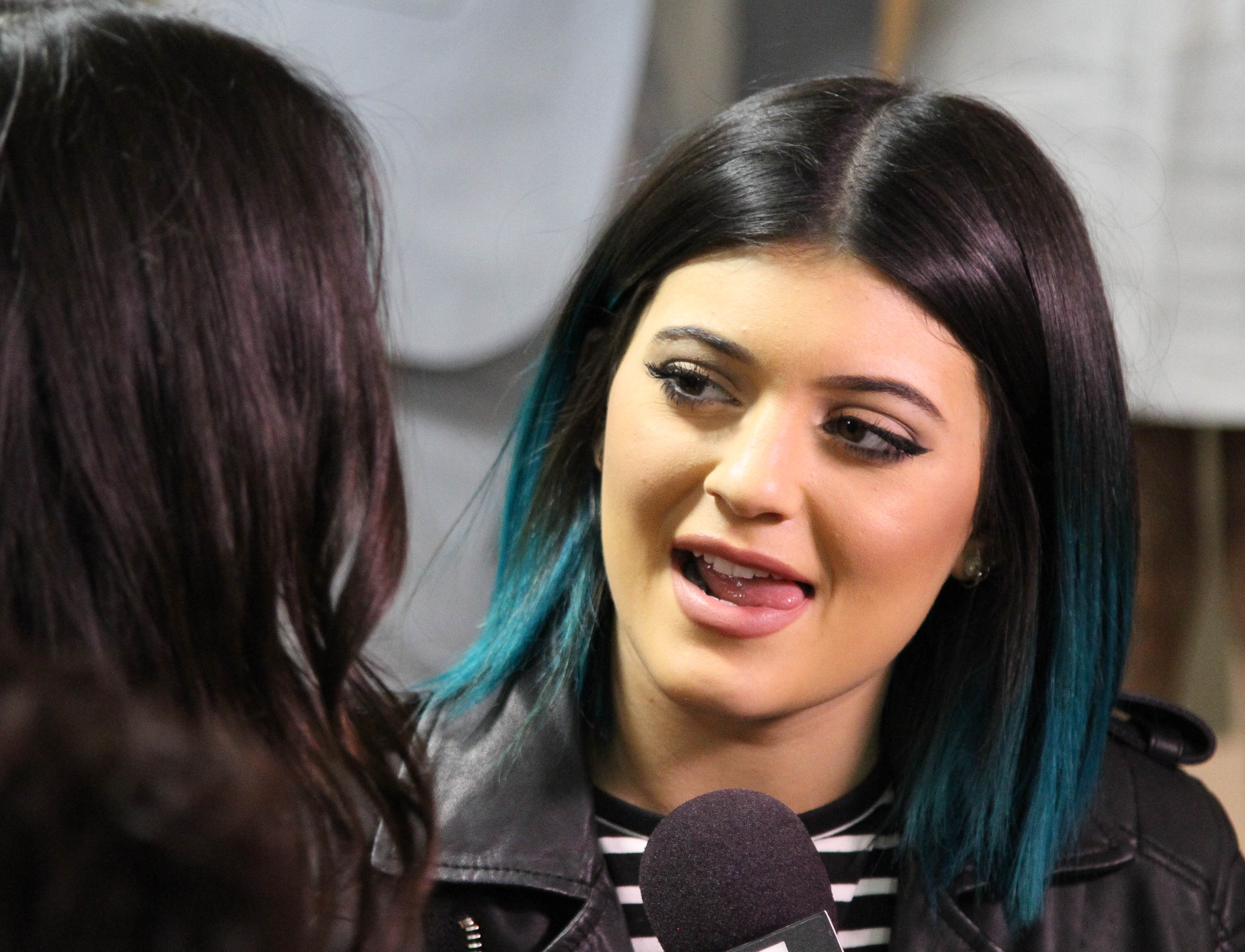 Can You Get Lip Fillers At 17? As Long As Kylie Jenner's Parent