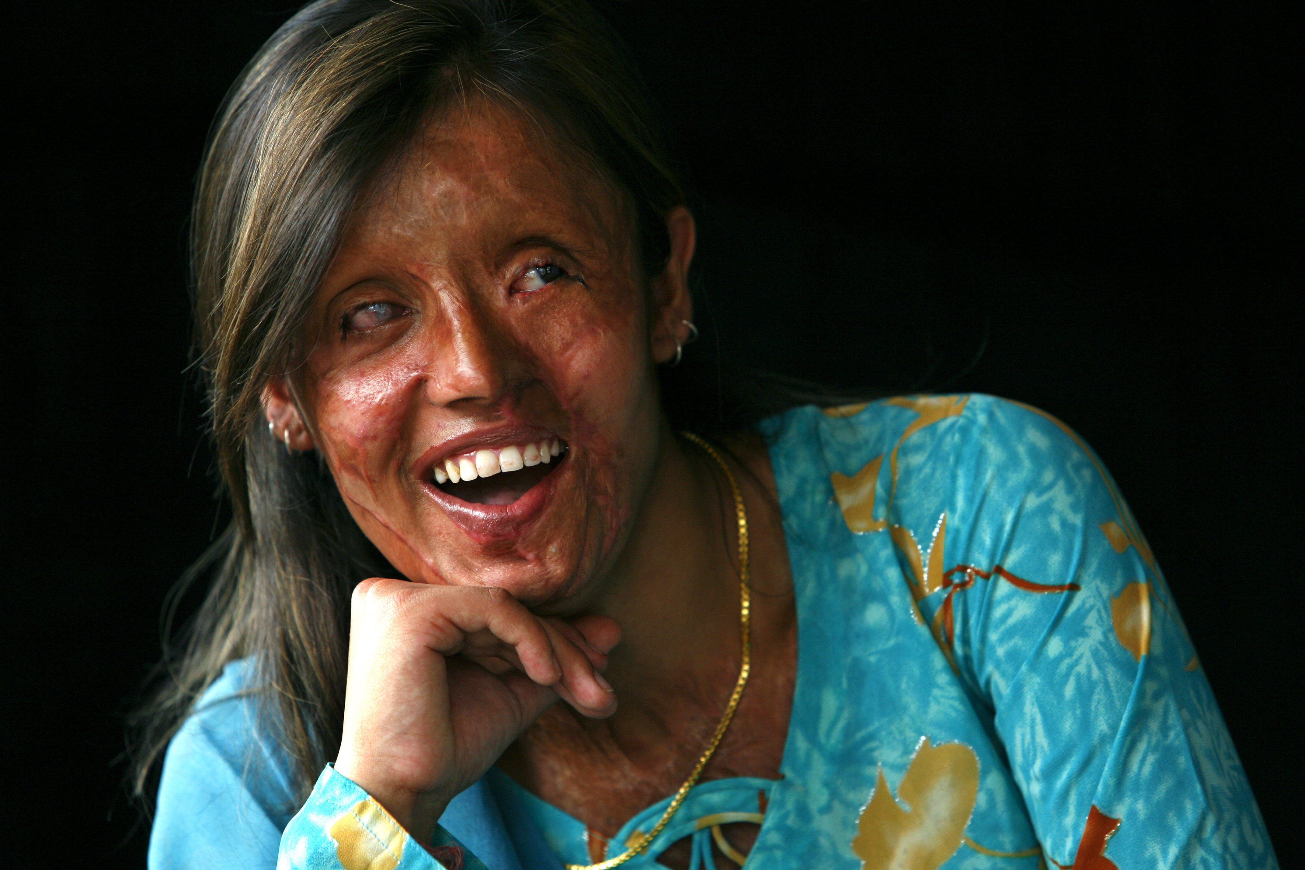 Image result for acid attack victim