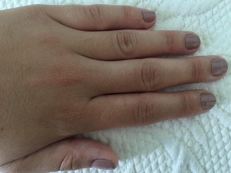 Turmoil from bleeding hands picture - images ceu estrelado tumblr quotes